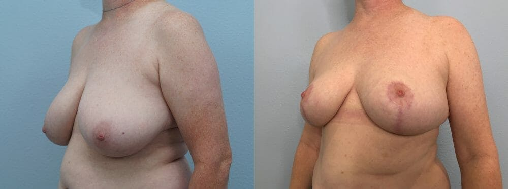 Breast Reduction Gallery - Patient 47122431 - Image 2