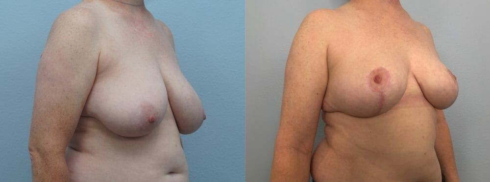Breast Reduction Gallery - Patient 47122431 - Image 4