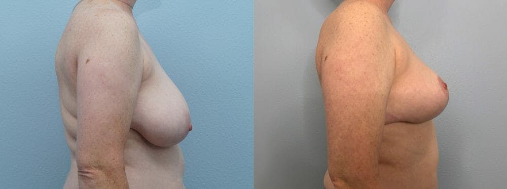 Breast Reduction Gallery - Patient 47122431 - Image 5