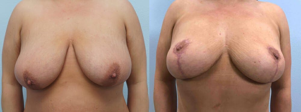 Breast Reduction Gallery - Patient 47122471 - Image 1