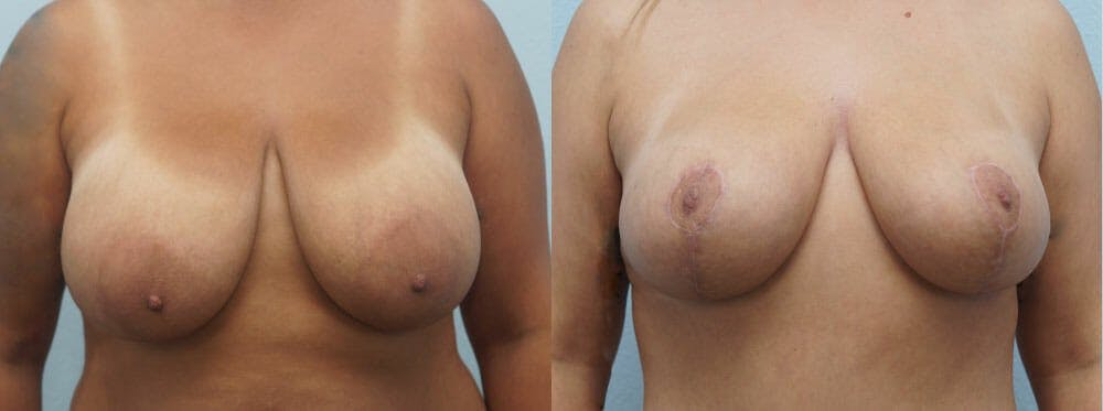 Breast Reduction Gallery - Patient 47122511 - Image 1