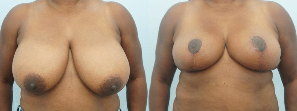Breast Reduction Gallery - Patient 47122536 - Image 1
