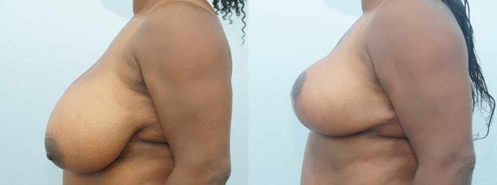 Breast Reduction Gallery - Patient 47122536 - Image 3