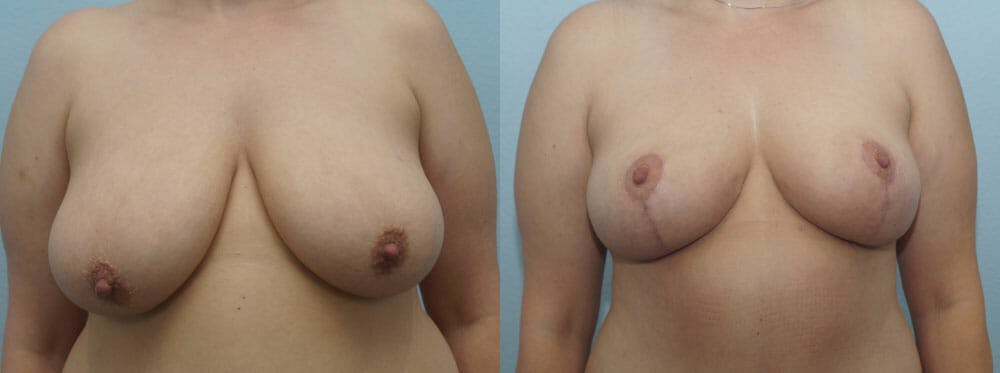 Breast Reduction Gallery - Patient 47122584 - Image 1