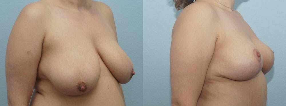 Breast Reduction Gallery - Patient 47122584 - Image 2