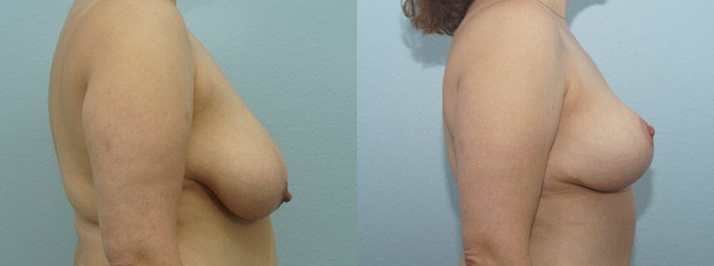 Breast Reduction Gallery - Patient 47122584 - Image 3