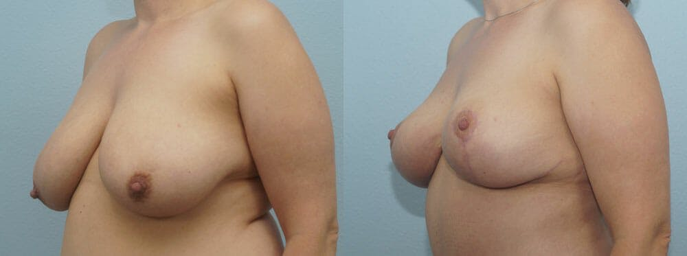 Breast Reduction Gallery - Patient 47122584 - Image 4