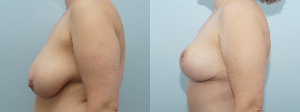 Breast Reduction Gallery - Patient 47122584 - Image 5