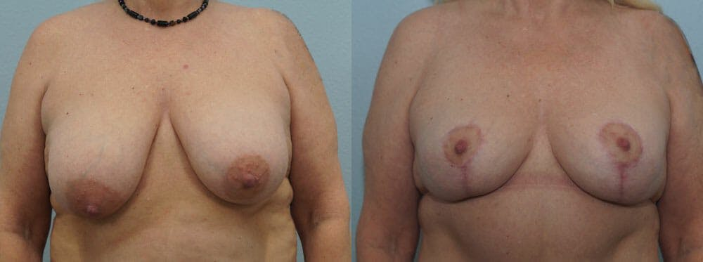 Breast Reduction Gallery - Patient 47122606 - Image 1