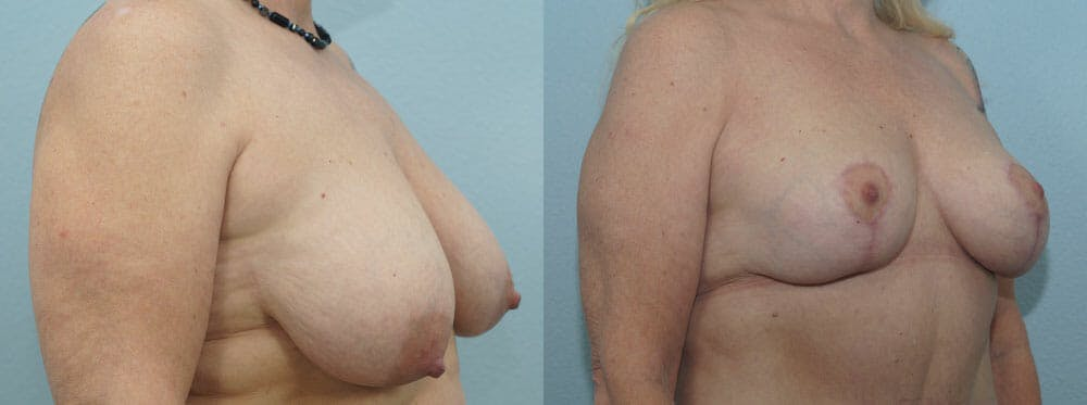 Breast Reduction Gallery - Patient 47122606 - Image 2