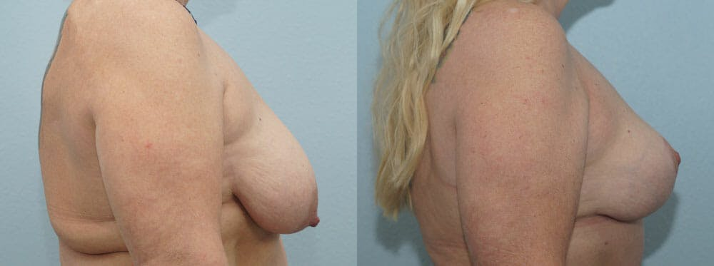 Breast Reduction Gallery - Patient 47122606 - Image 3