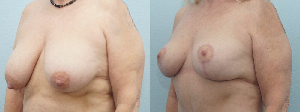 Breast Reduction Gallery - Patient 47122606 - Image 4