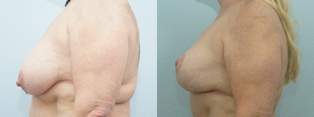 Breast Reduction Gallery - Patient 47122606 - Image 5
