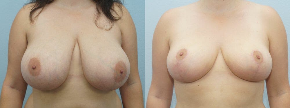 Breast Reduction Gallery - Patient 47122661 - Image 1