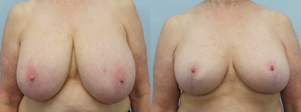 Breast Reduction Gallery - Patient 47122690 - Image 1