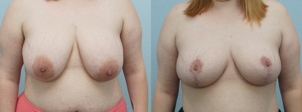 Breast Reduction Gallery - Patient 47122733 - Image 1