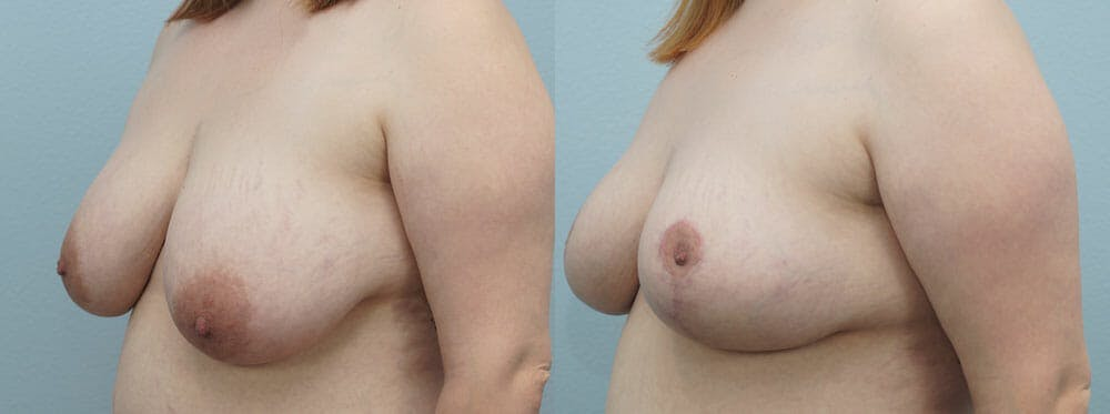 Breast Reduction Gallery - Patient 47122733 - Image 2