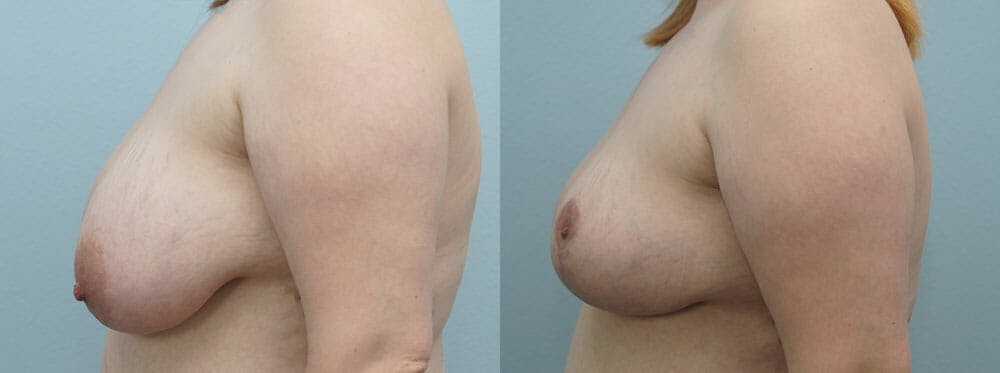 Breast Reduction Gallery - Patient 47122733 - Image 3