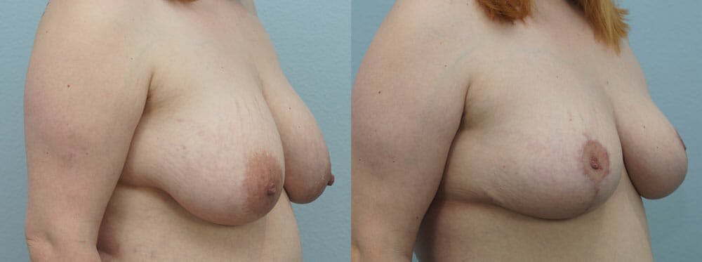 Breast Reduction Gallery - Patient 47122733 - Image 4