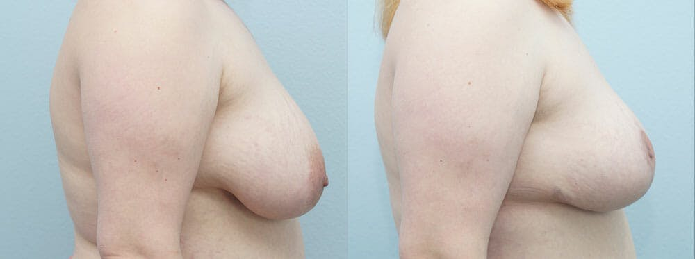 Breast Reduction Gallery - Patient 47122733 - Image 5