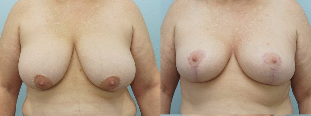 Breast Reduction Gallery - Patient 47122743 - Image 1