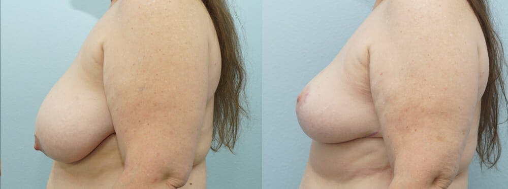 Breast Reduction Gallery - Patient 47122743 - Image 2