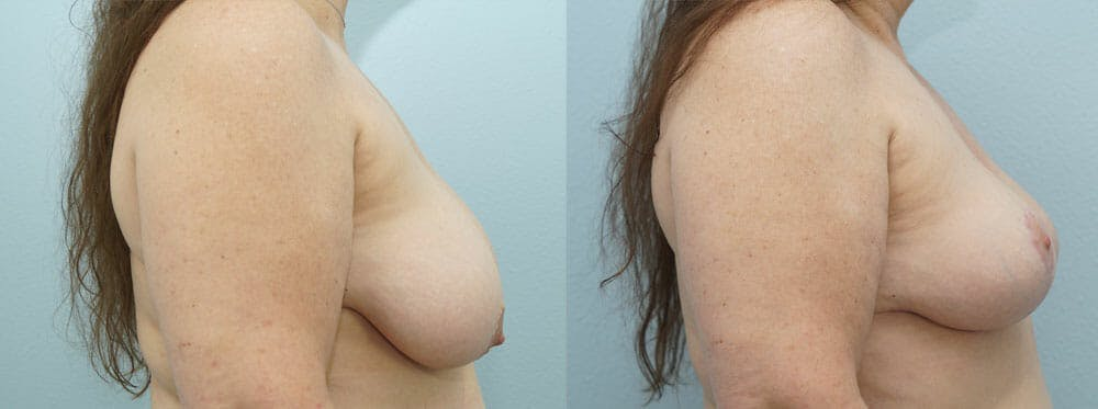 Breast Reduction Gallery - Patient 47122743 - Image 3