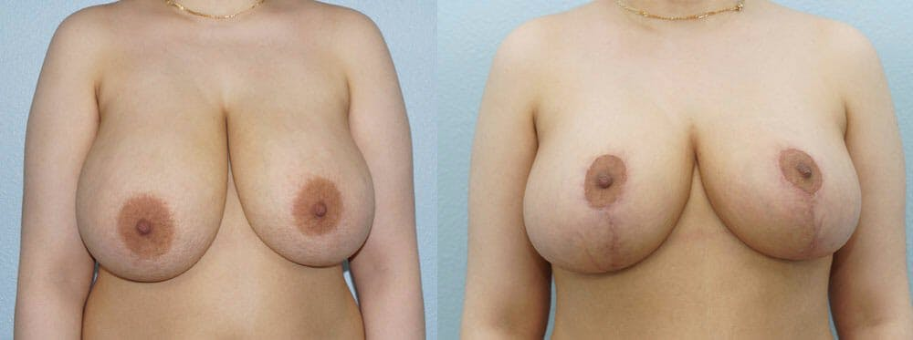 Breast Reduction Gallery - Patient 47122776 - Image 1