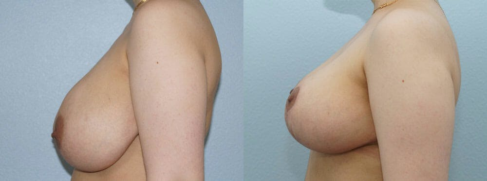 Breast Reduction Gallery - Patient 47122776 - Image 2