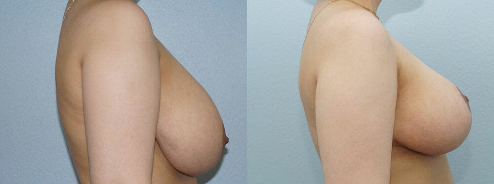 Breast Reduction Gallery - Patient 47122776 - Image 3