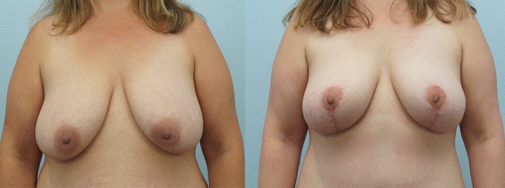 Breast Reduction Gallery - Patient 47122793 - Image 1
