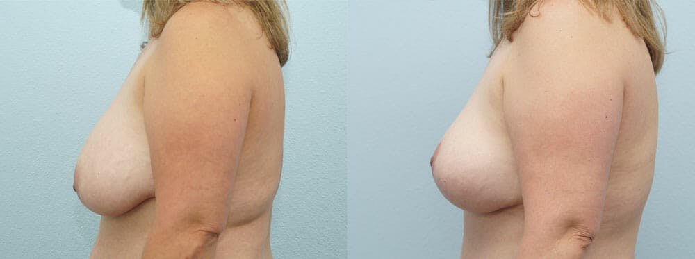 Breast Reduction Gallery - Patient 47122793 - Image 2