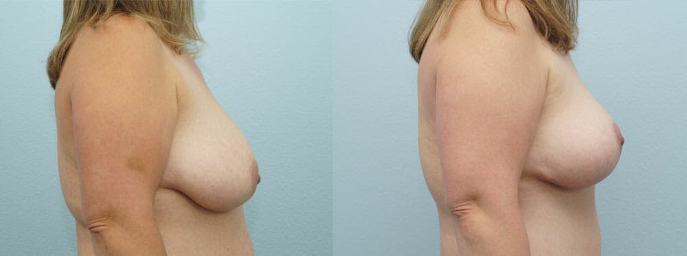 Breast Reduction Gallery - Patient 47122793 - Image 3