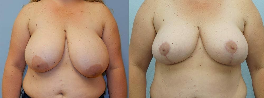 Breast Reduction Gallery - Patient 47122821 - Image 1