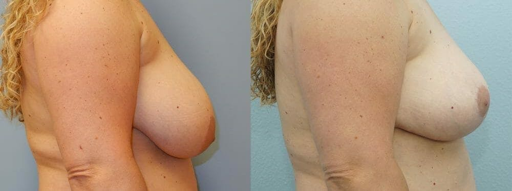 Breast Reduction Gallery - Patient 47122821 - Image 2