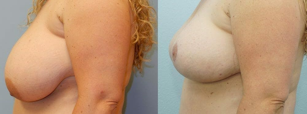Breast Reduction Gallery - Patient 47122821 - Image 3