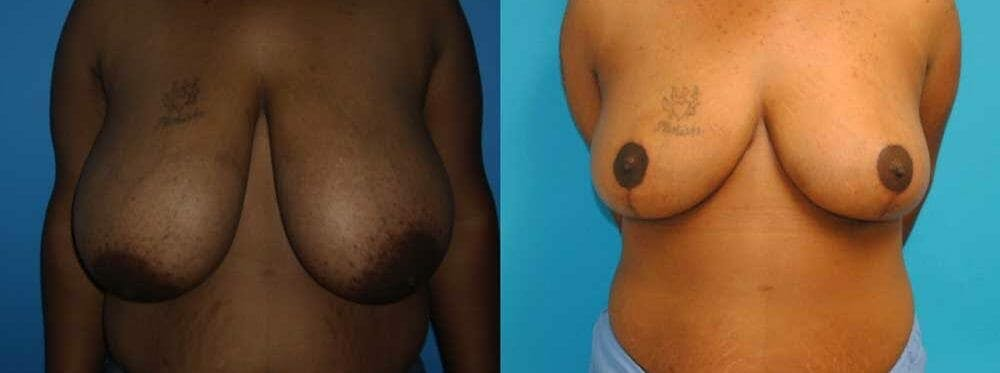 Breast Reduction Gallery - Patient 47125471 - Image 1