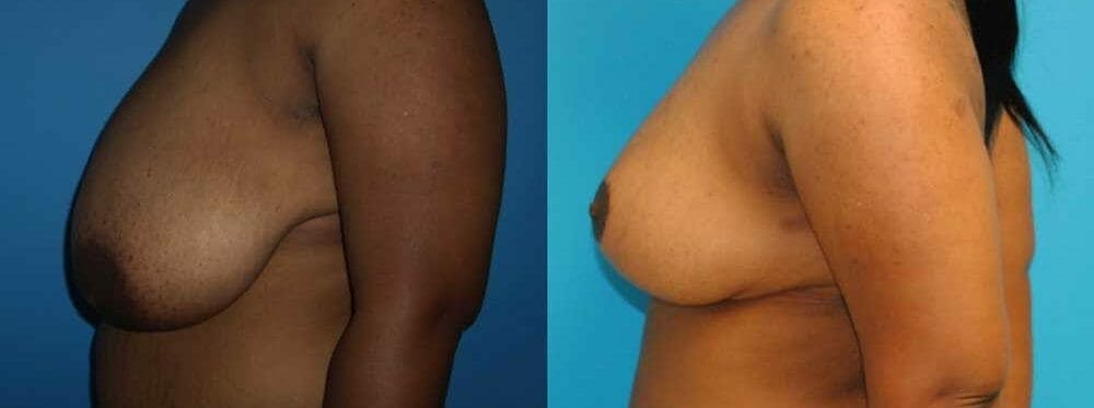 Breast Reduction Gallery - Patient 47125471 - Image 2