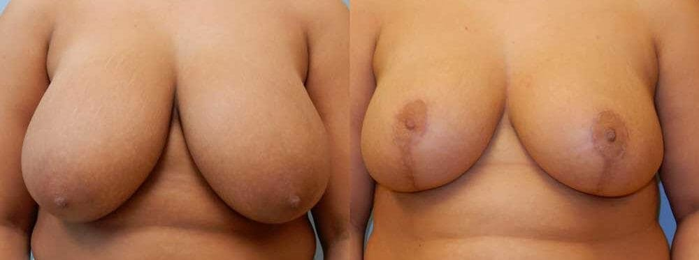 Breast Reduction Gallery - Patient 47125487 - Image 1