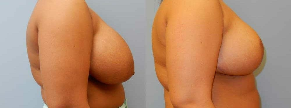 Breast Reduction Gallery - Patient 47125487 - Image 3