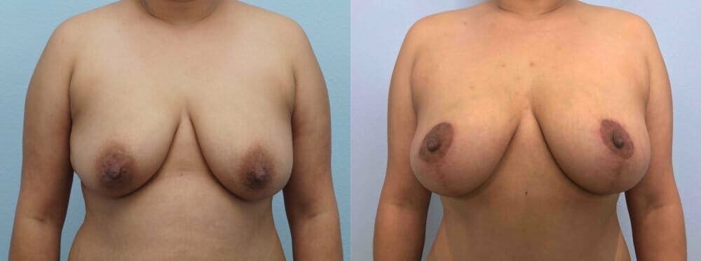 Breast Lift Gallery - Patient 47125674 - Image 1