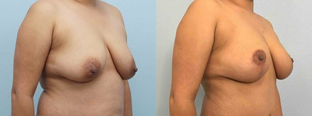 Breast Lift Gallery - Patient 47125674 - Image 2