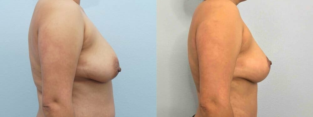 Breast Lift Gallery - Patient 47125674 - Image 3