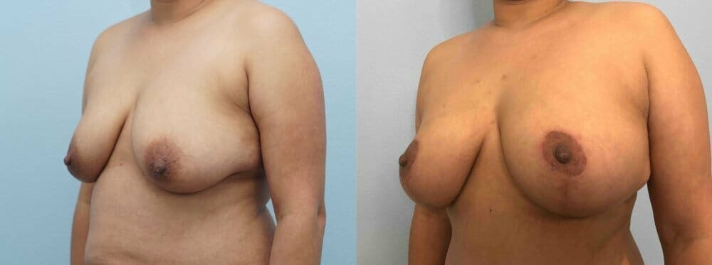 Breast Lift Gallery - Patient 47125674 - Image 4