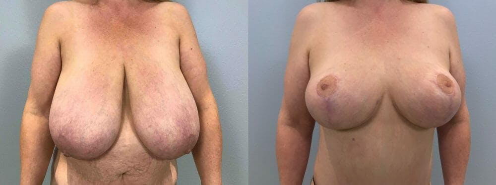 Breast Lift Gallery - Patient 47125706 - Image 1