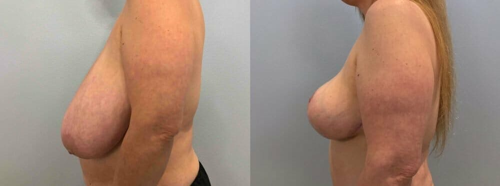 Breast Lift Gallery - Patient 47125706 - Image 2