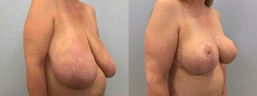 Breast Lift Gallery - Patient 47125706 - Image 3