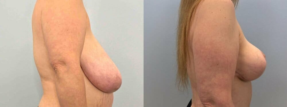 Breast Lift Gallery - Patient 47125706 - Image 4