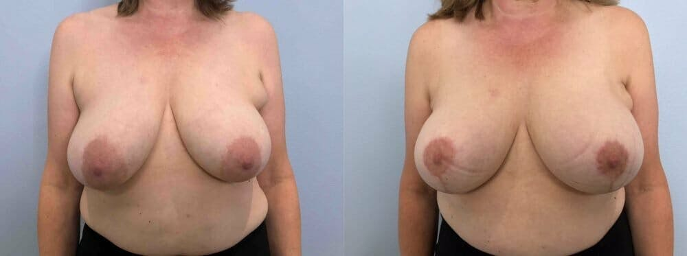 Breast Lift Gallery - Patient 47125739 - Image 1