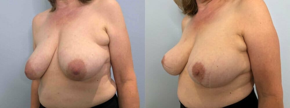 Breast Lift Gallery - Patient 47125739 - Image 2